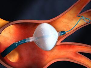CryoAblation Catheter как метод лечения фибрилляции предсердий