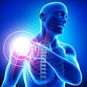 Лечение плечевого сустава методом InSpace™ Balloon